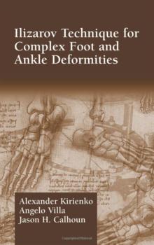 Ilizarov-Technique-for-Complex-Foot-and-Ankle-Deformities-copy-e1481284668945