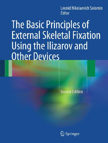 The-Basic-Principles-of-external-Skeletal-Fixation-Using-The-Ilizarov-and-Other-Devices